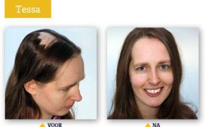 Voor en na foto van Tessa - EchtHaar Kliniek